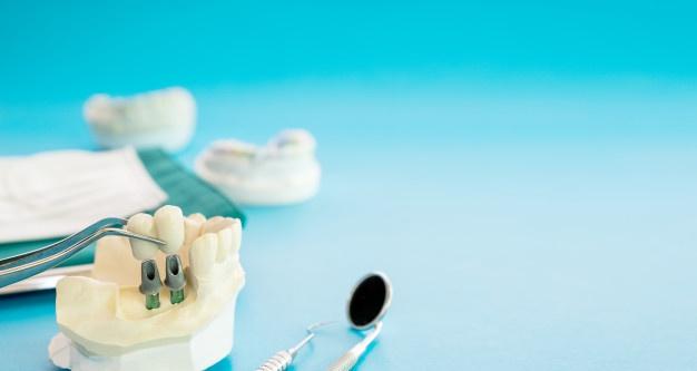 Zobni implantat iz titana