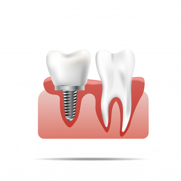 Kakovostni zobozdravstveni izdelki