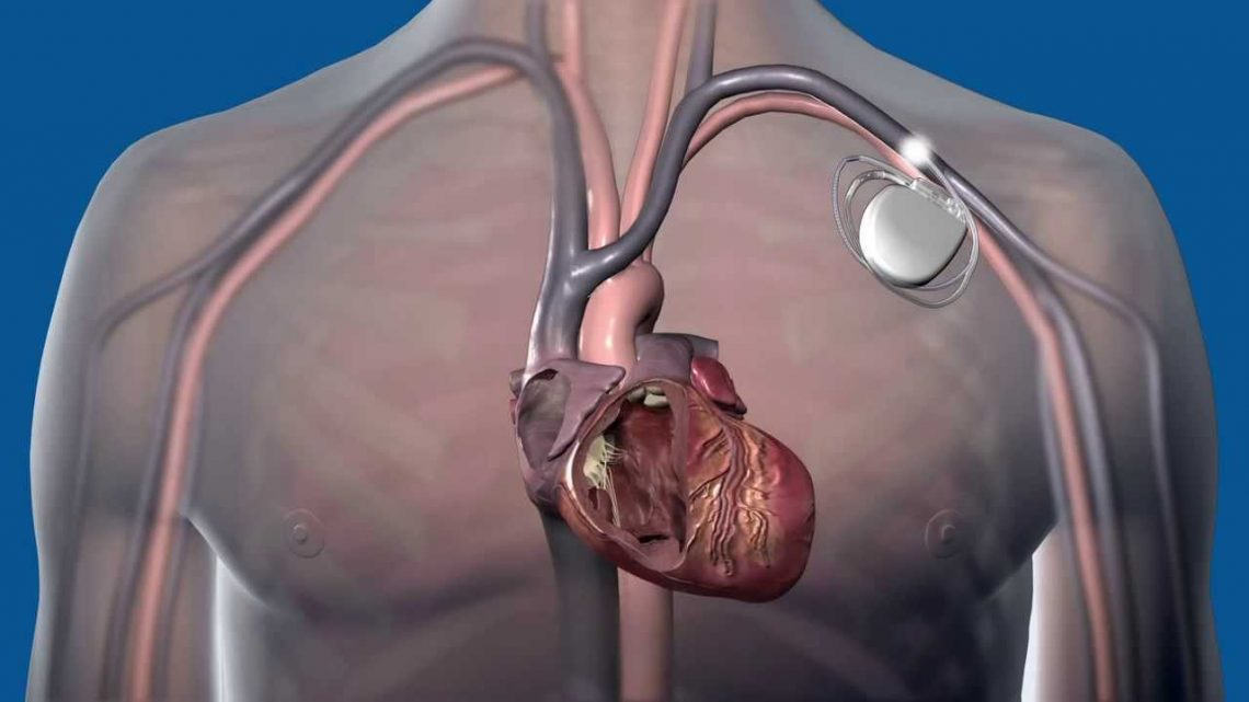 Kako uporabljamo defibrilator za srce?